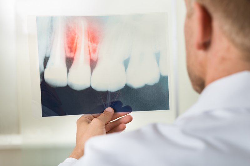 Cysts of the Jaws | Private Dental Surgery in Penryn